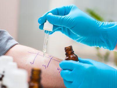 Allergietest auf Unterarm