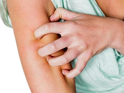 Eine Frau kratzt sich kräftig am Arm.