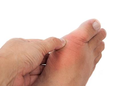 Eine Hand drückt auf das schmerzende und geschwollen Zehgelenk.