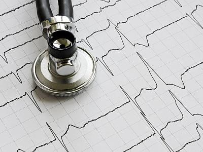 Stethoskop auf EKG