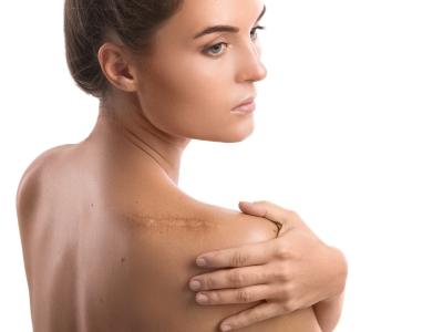 Narben können verblassen dank richtiger Behandlung und Pflege